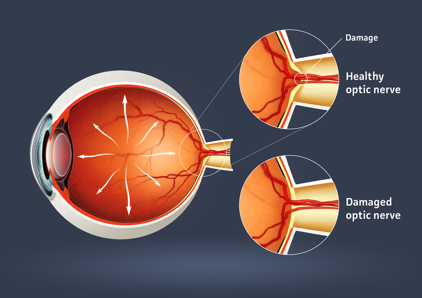 glaucoma article